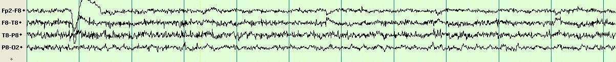 Epilepsi Hakkında Herşey